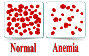 anemia - reduction in red blood cells